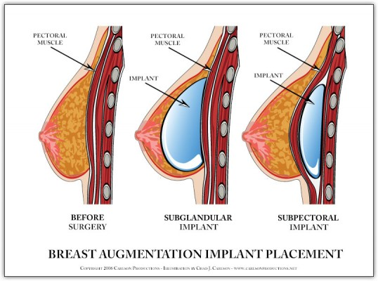 breast implant diagram